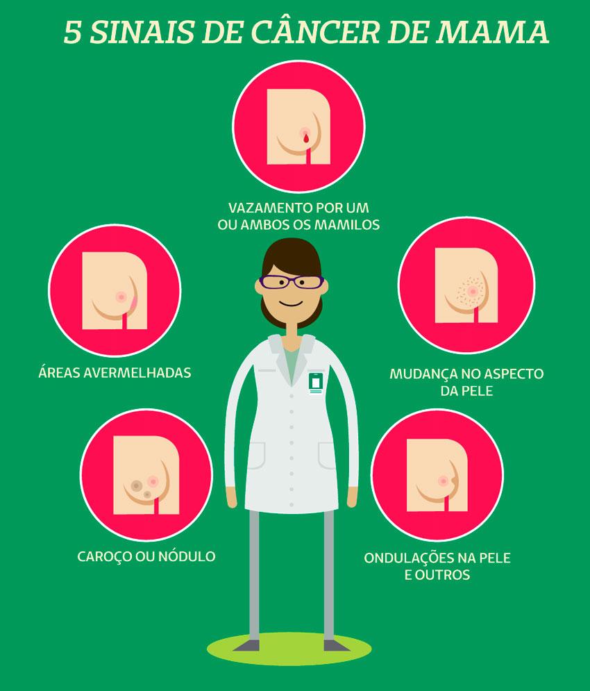 Infográfico com os cinco sinais de câncer de mama
